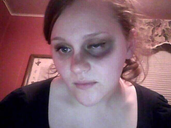 How to Give Yourself a Black Eye - Definite Guide 01