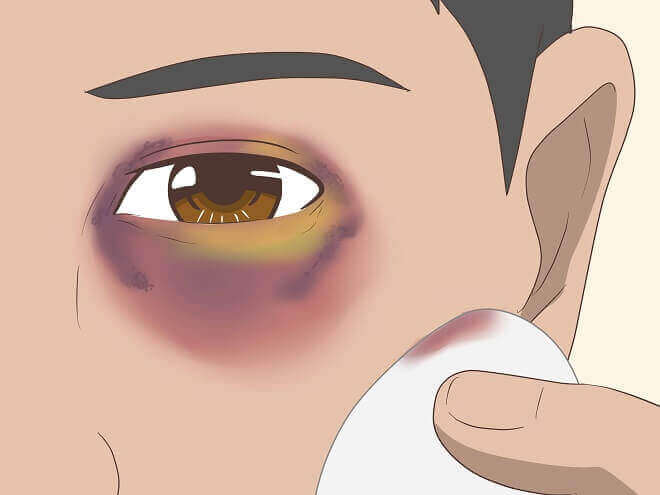 How to Give Yourself a Black Eye - Definite Guide 02