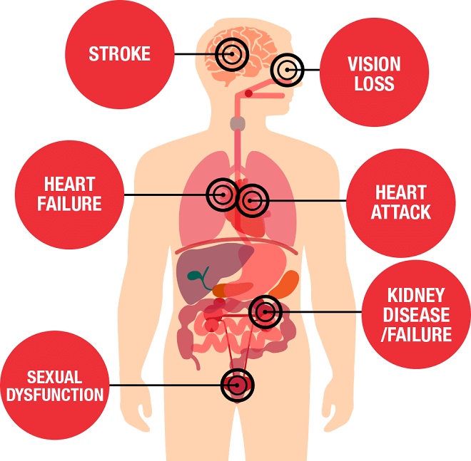 Causes and Effect of Sudden Hypertension